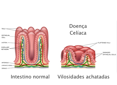 Doença celíaca & Síndrome de Down